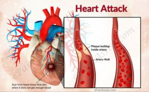 Heart attack image
