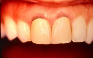 Couronnes dentaires non adaptées