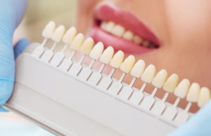 Choosing the color of your teeth