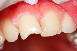 My tooth is broken