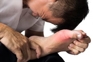 Hallux or Metatarsophalangeal Joint Pain, Male Foot Pain