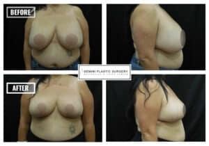 Remove Implants, Breast Lift, Liposuction #001 · Dr Della Bennett