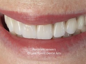 Questions About Veneers
