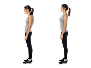 Posture and TMJ Disorder