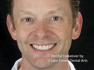 Dentistry with less drilling