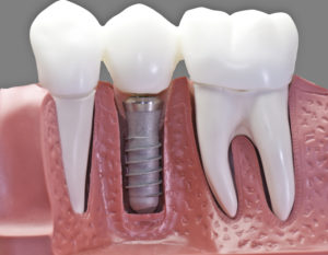 Single Tooth Replacement