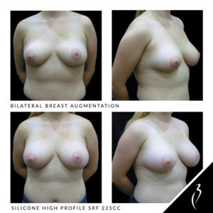 Before After Breast Implants · Rancho Cucamonga · Case Study 511