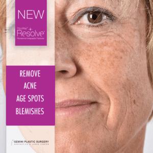 Picoway Laser Treatment: Remove Acne, Age Spots, Blemishes