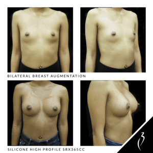 Before After Breast Implants · Rancho Cucamonga · Case Study 5023
