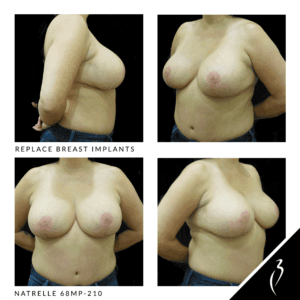 Before After Breast Implants · Rancho Cucamonga · Case Study 5024