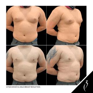 Gynecomastia, Male Breast Reduction · Rancho Cucamonga #5056
