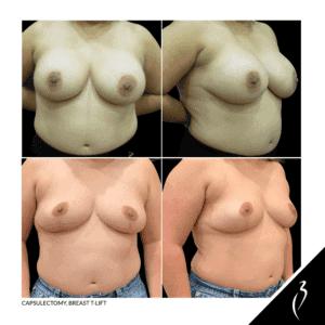 Capsulectomy Breast T Lift #5061 · Della Bennett MD · Rancho, Ca.