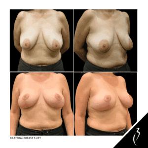Bilateral Breast T-Lift #5063 · Della Bennett MD · Rancho Ca.
