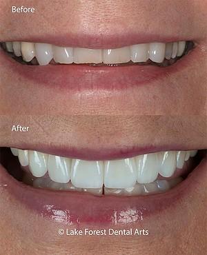 teeth wearing down