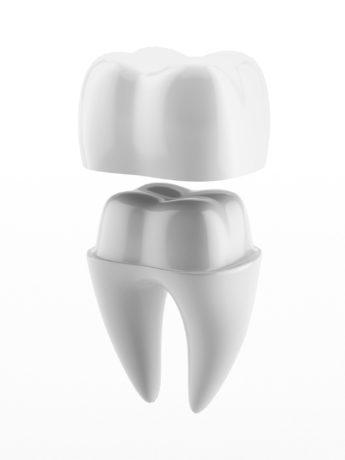 Fake ceramic teeth
