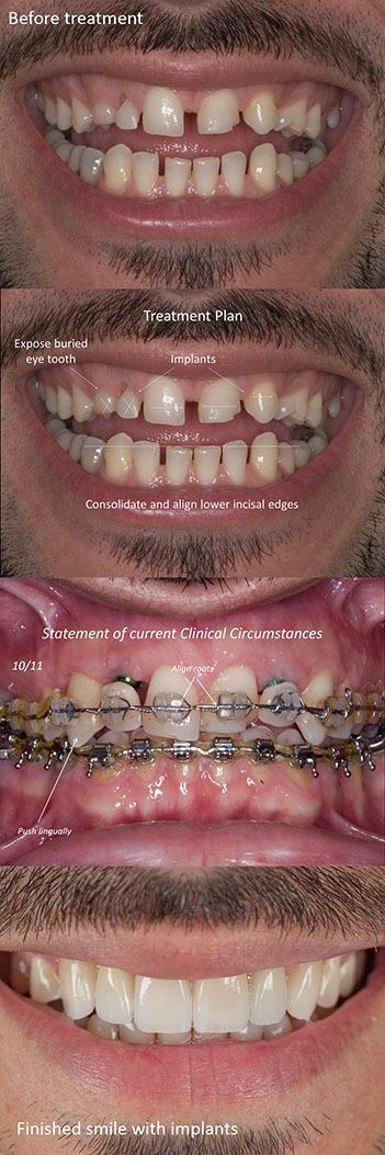 Dental implant teatment