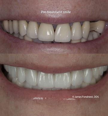 transform my smile!
