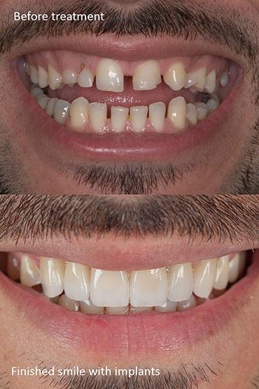 Prosthodontic dental treatment for a better smile makeover