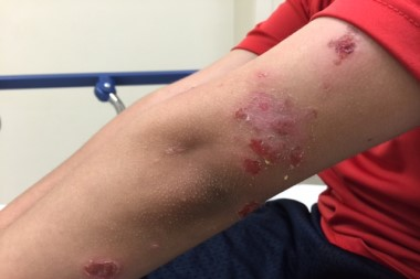 A Blistering Rash in an Otherwise Healthy 9-Year-Old Boy