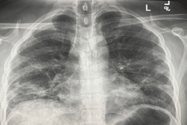 Chest X-Ray Findings in 636 Ambulatory Patients with COVID-19 Presenting to an Urgent Care Center: A Normal Chest X-Ray Is no Guarantee