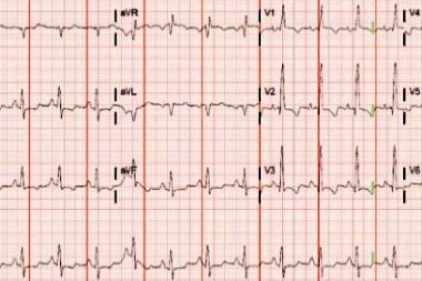 A 38-Year-Old Female with Abdominal Pain and Chest Tightness