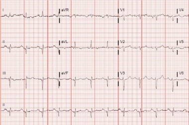A 57-Year-Old Female with Cardiological History and Shortness of Breath