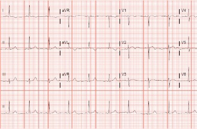 A 61-Year-Old Woman with a 2-Day History of Chest Pain