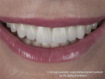 Porcelain dental bridge picture
