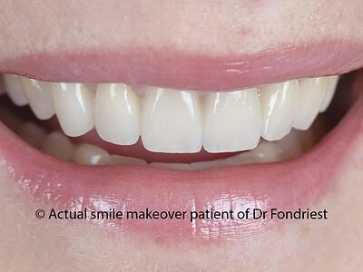 Porcelain teeth covers