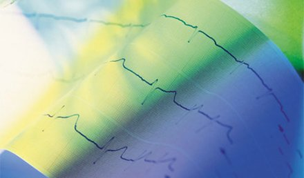 Chest Pain, Bradycardia, and ECG Changes in Acute Cholecystitis