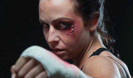 Mixed Martial Arts Injuries