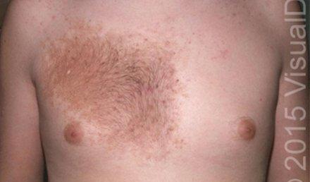 Irregular Skin Patch on a 16-Year-Old Boy