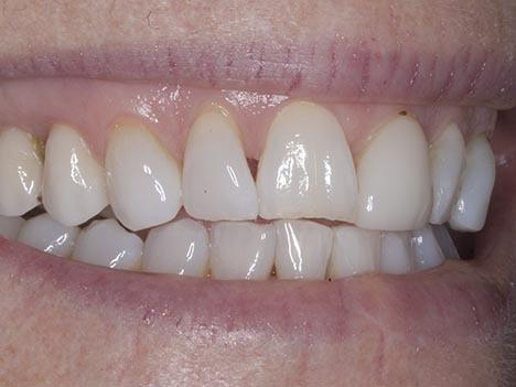 Triangular spaces between Teeth