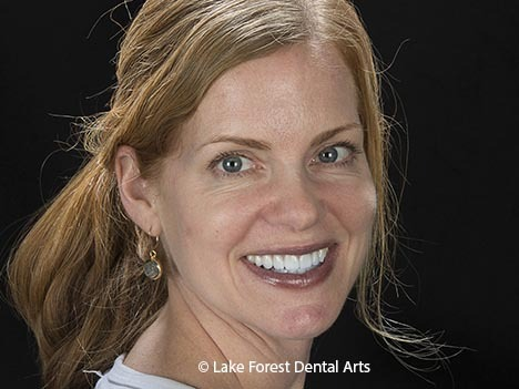 Cosmetic Dental Face lifts