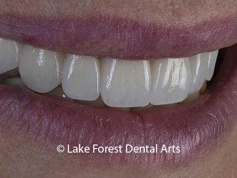 Dental implants are safe for smile makeovers