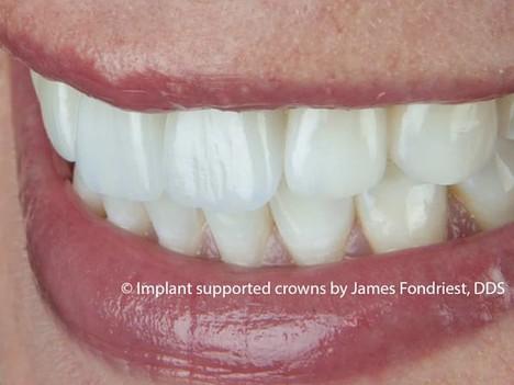 Dental Implants   implant crown   implant dentist