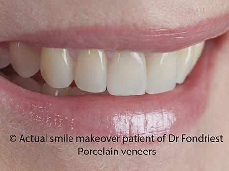 Veneers are good for teeth