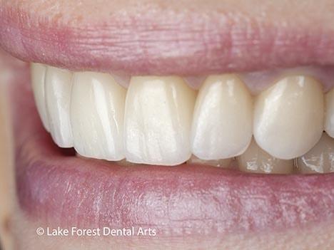 Veneers instead of braces