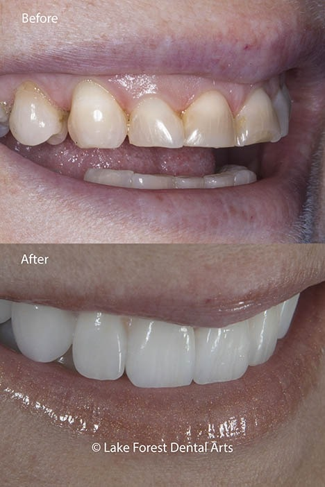 The wear and tear of bruxism