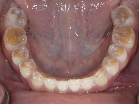 Dental problems with celiac disease