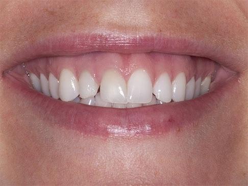 crown lengthening will raise the gum line