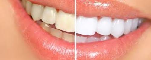 Blanchiment dentaire dentiste paris 16 richard amouyal