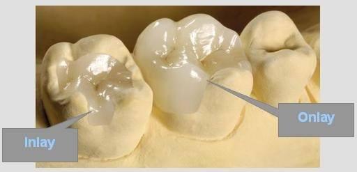 Inlay – Onlay céramique et composite dentiste amouyal paris 16