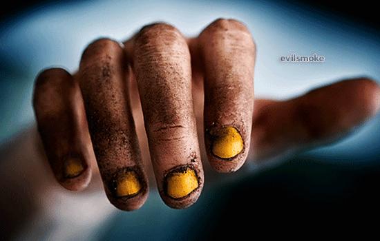 foto-zheltizna-ot-sigaret