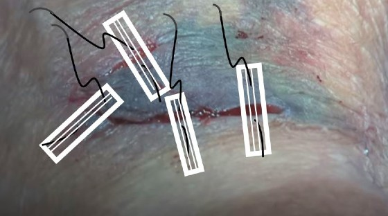 Lacerations in the Elderly Patient