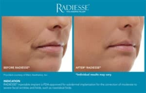 Before and After Pictures- Radiesse End Results- Gemini Plastic Surgery in Rancho Cucamonga, California