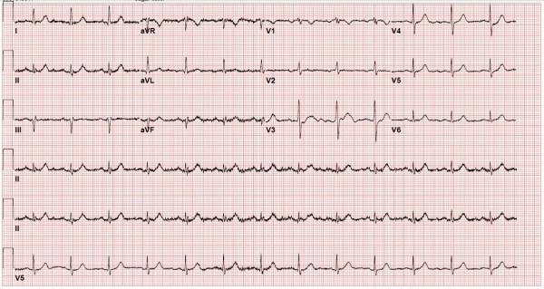 ECG of patient