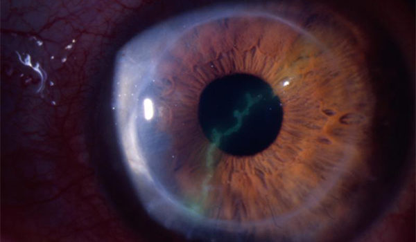 Adult with Eye Pain, Photophobia, and Decreased Vision