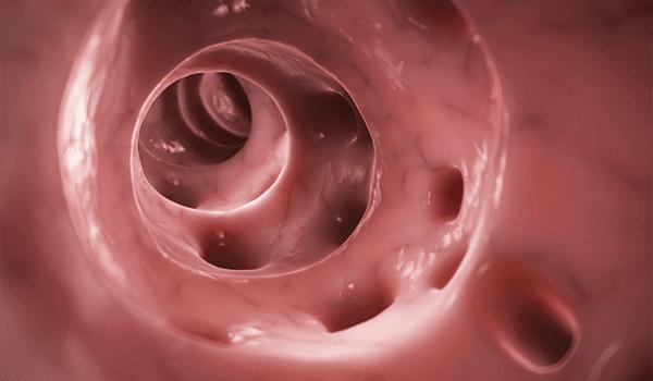 Diverticulitis in the Urgent Care Setting