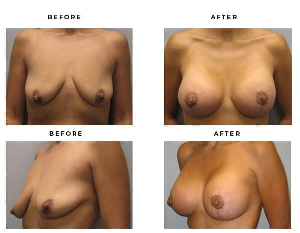 Before & After Images- Breast Augmentation and Lift Surgery Galleries. Top Board Certified Plastic Surgeon in Los Angeles, Orange County, Inland Empire & Rancho Cucamonga, Ca. Case Study #3342